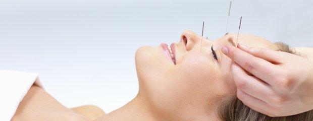 Técnicas de acupuntura tratam celulite, acne e até flacidez.